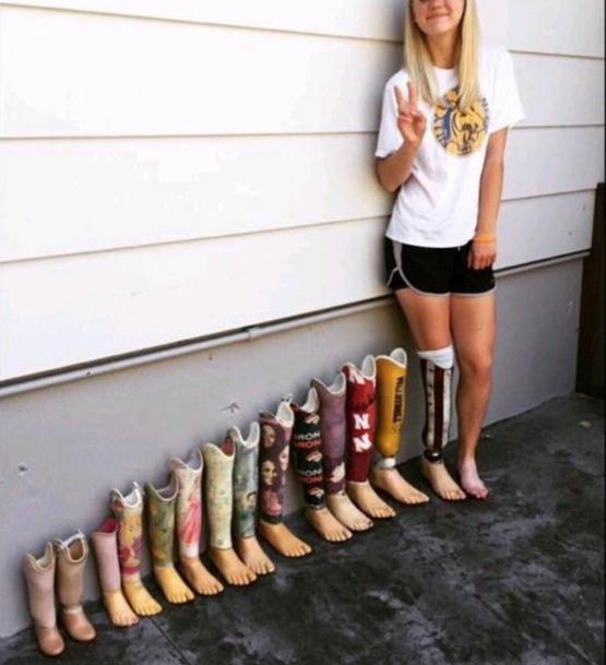 Prosthetic leg progression.