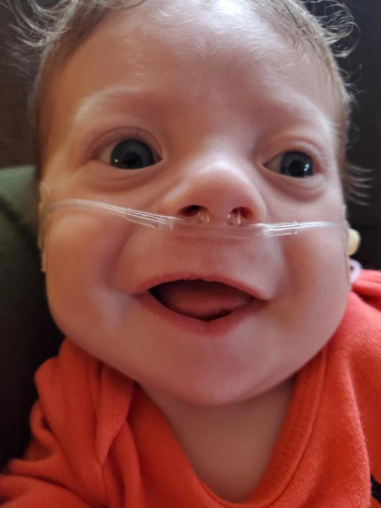 ECMO day 7: they are going to do a Bronchoscopy to get a sputum sample from his lungs. They will move him to a VDR breathing machine and try to wean off ECMO.