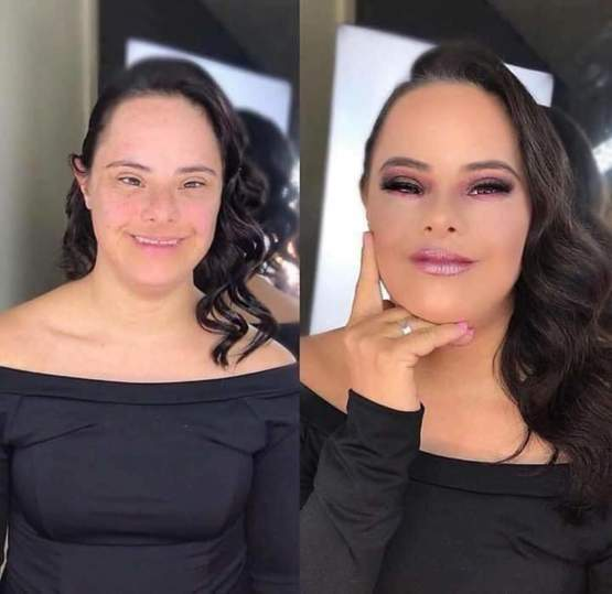 Her down syndrome couldn't stop that Glow up