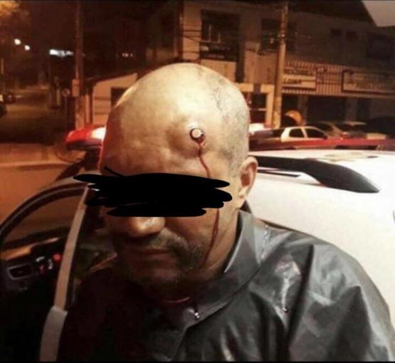 Man Survives Gunshot to the head, Bullet stopped at the bone