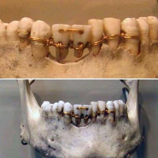 Dental work found on 4000 years old mummy - Trending on Reddit