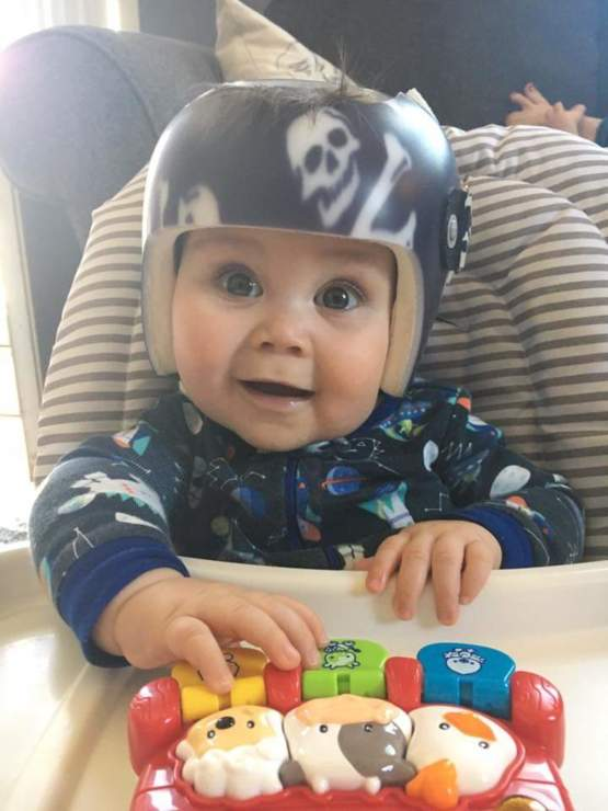My son had to wear a helmet as a baby to correct his head shape. He always rocked the look.