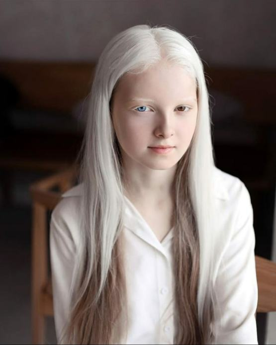 A girl with albinism and heterochromia