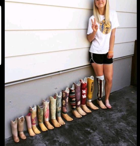 Prosthetic leg progression. Very Cool