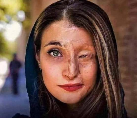 Picture of an acid terrorrism victim