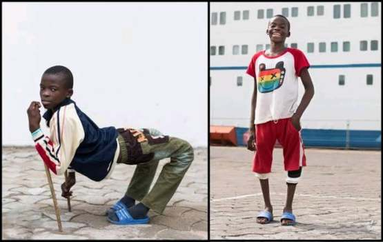 A Young boy named Ulrich before and after surgery to fix his backwards legs.