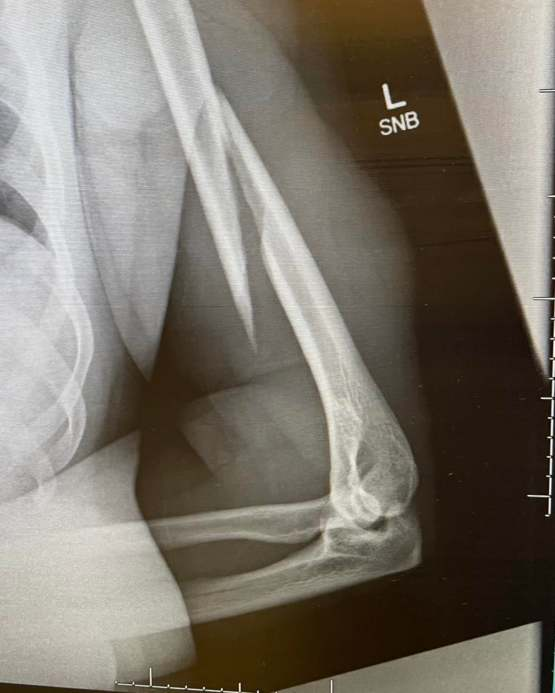 I snapped my left humerus while arm wrestling. 10/10 would not recommend.