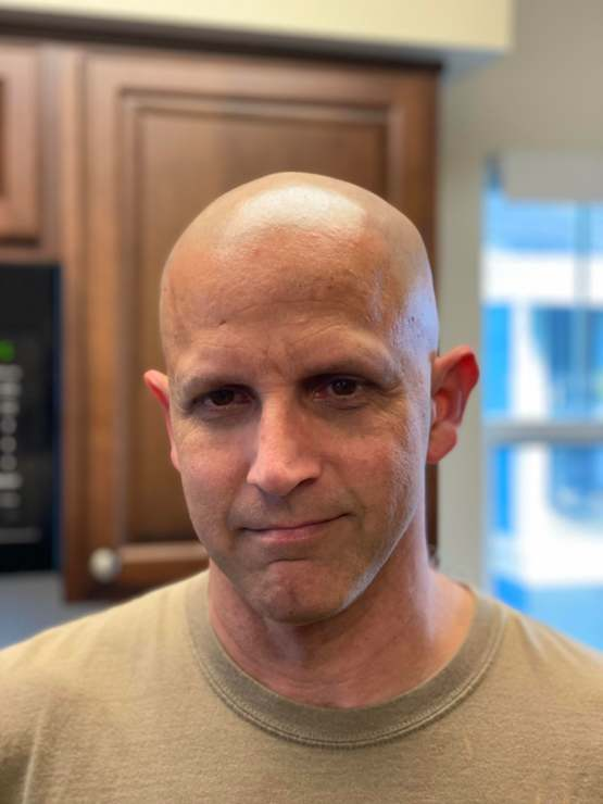 Shaved my head. Going through radiation and chemo, my brain is literally trying to kill me.