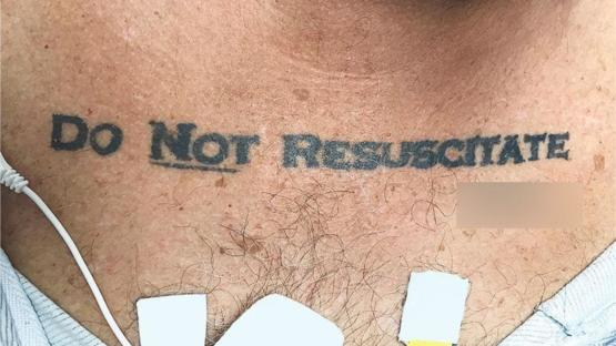 Doctors leave a man to die, honoring his DNR tattoo-Florida 2017