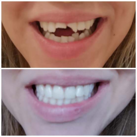 My teeth last Wednesday vs after a trip to the dentist