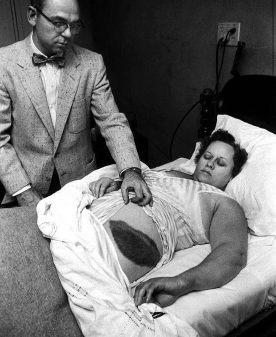 1954 -Ann Hodges, the only human being in recorded history to be hit by a meteorite.