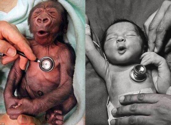 So cute   Reaction of a baby gorilla and a human baby to the cold stethoscope.